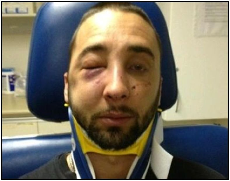 Photographer Michael Farkas after Niagara Regional Police Service Constable Paul Zarafonitis punched him in the face